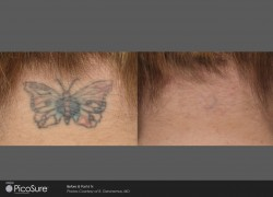 BA-PicoSure-Geronemus-Post6Tx-Buttrfly-Fullscreen1
